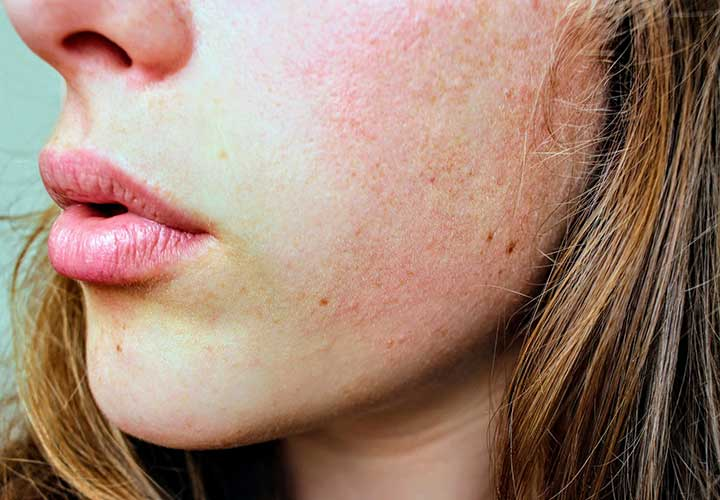 Reasons behind skin rashes