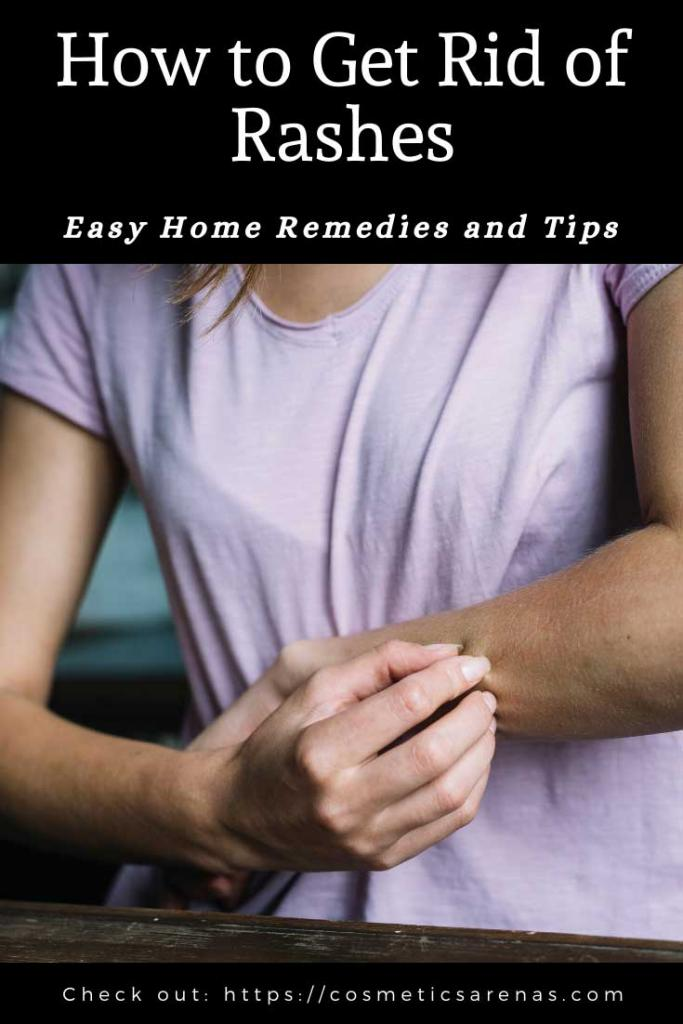 How to Get Rid of Rashes