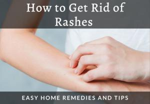 tips and home remedies to know how to get rid of rashes