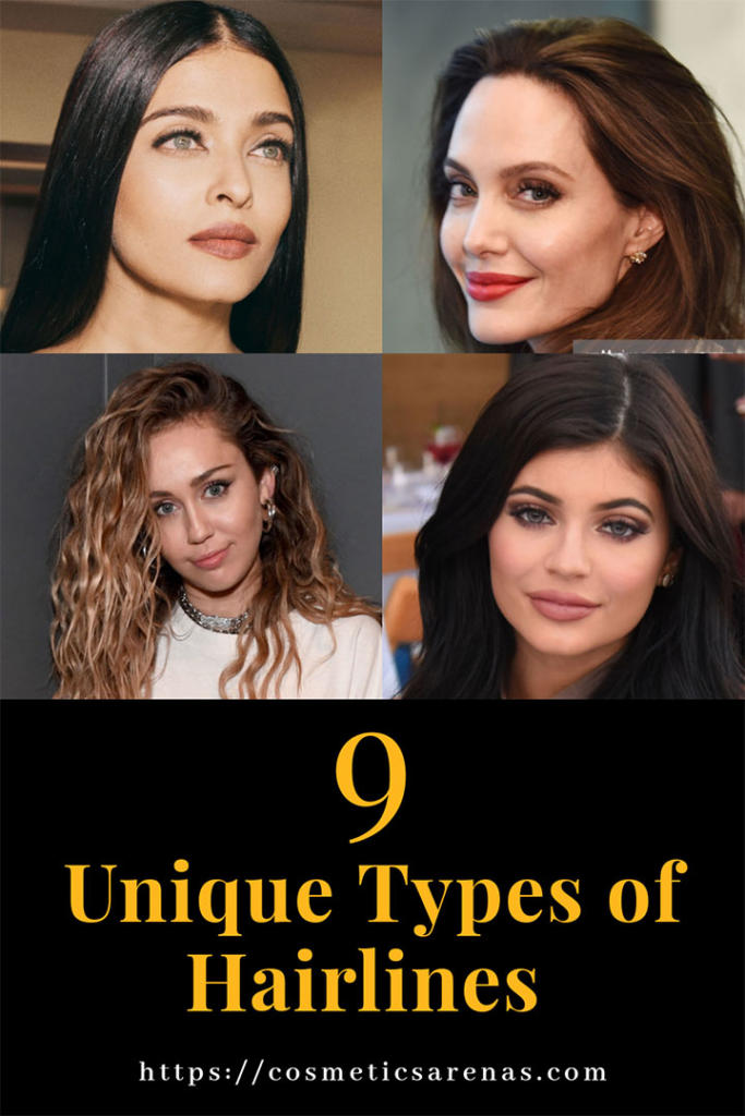 Different Types of Hairlines
