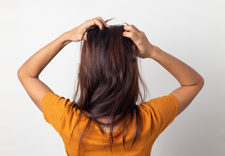 Tips and Tricks to Get Rid Of Dandruff Flakes