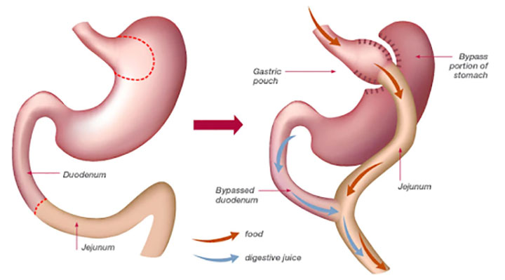 Bariatric Surgery can Help You to Control Obesity