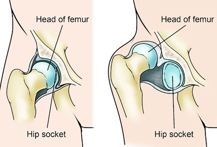 Congenital Dislocation of Hip is Common Among Children