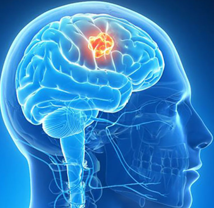 Eat the Right Food and Consult with the Right Neurosurgeon to Control the Migraines Pain