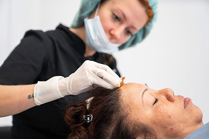 Experts Answer Quesries Related to Female Hair Transplantation
