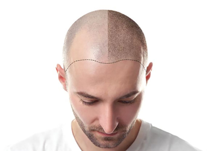 Experts Explain the Risk Factors Involved with a Hair Transplant