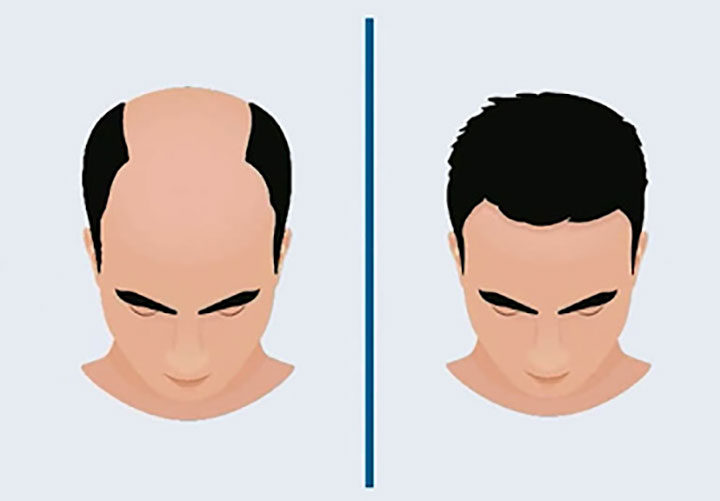 One Stop Guide about Quick Hair Transplant in India