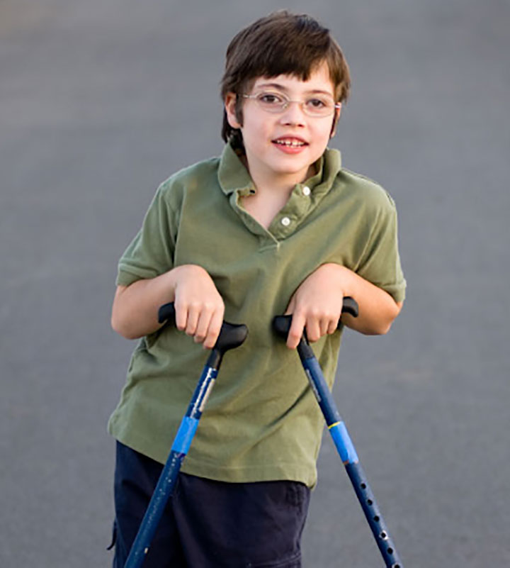 Orthopaedic Problem like Cerebral Palsy is Also Common Among Children