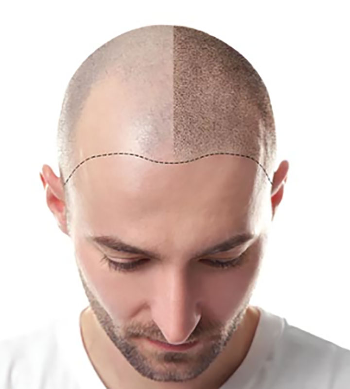 Techniques and Risk Factors Involved with a Hair Transplant