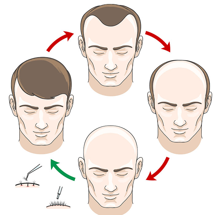 The Stages of Hair Transplant